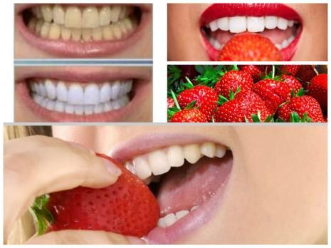 Como-blanquear-los-dientes-de-forma-natural-con-fresas